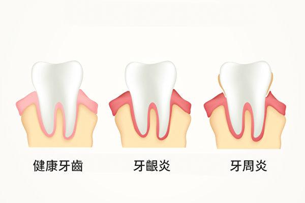 [新聞] 牙周病是身體慢性發炎?為體內滅火可防多種疾病